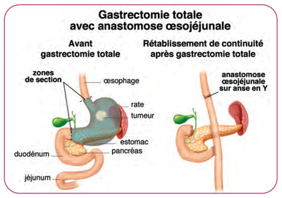 Gastrectomie totale